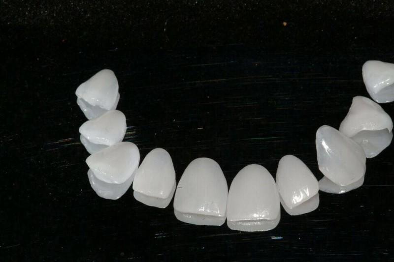 As lentes de contato cobrem os dentes naturais