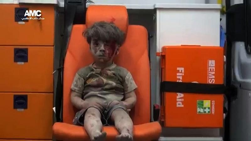 Menino de cinco anos identificado como Omran Daqneesh aparece coberto de poeira nas imagens