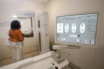 Mamografias poderão ser realizadas sem custos pelo IPE Saúde de 15 a 31 de outubro