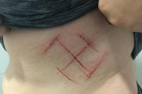 A jovem apresentou marcas feitas com canivete que lembram a suástica nazista