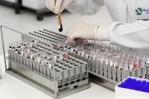ANS inclui exame para coronavírus na cobertura dos planos de saúde