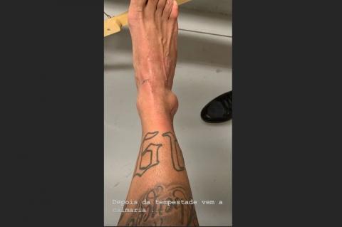 Após ser cortado da Copa América, Neymar divulga foto do tornozelo inchado