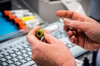 Planos de saúde terão de cobrir exames para detectar novo coronavírus
