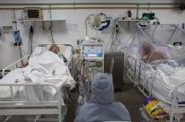 PF investiga desvio na compra de respiradores no Amazonas