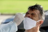 Ufrgs recebe 50 mil testes para diagnóstico de Covid-19