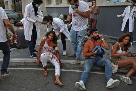 Ao menos 150 vítimas da explosão em Beirute ficarão permanentemente incapacitadas