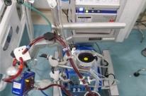 Oxigenação extracorpórea é usada em pacientes com Covid-19 no Hospital de Clínicas
