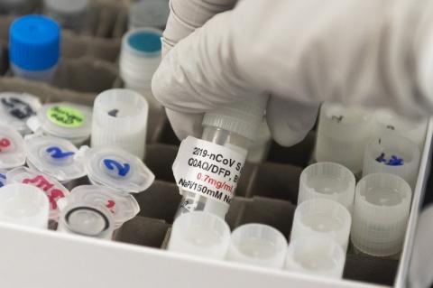 Transferência de tecnologia de vacinas ao Brasil pode demorar até dez anos